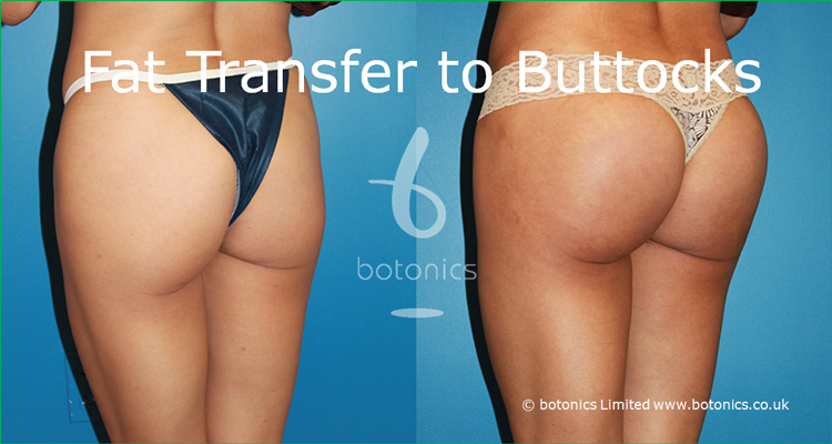 fat grafting to buttocks before and after