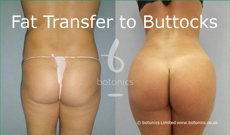 Before and after photo of buttock enhancement with fat transfer combined with Vaser Lipo