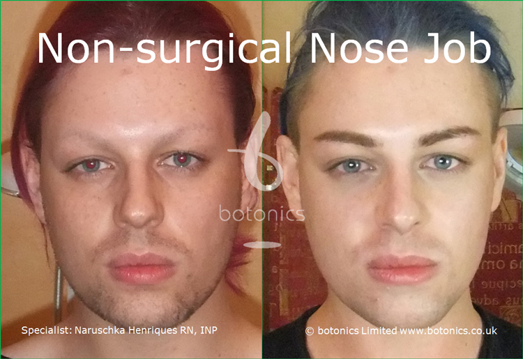Before and after photo of joseph harwood non surgical nose job