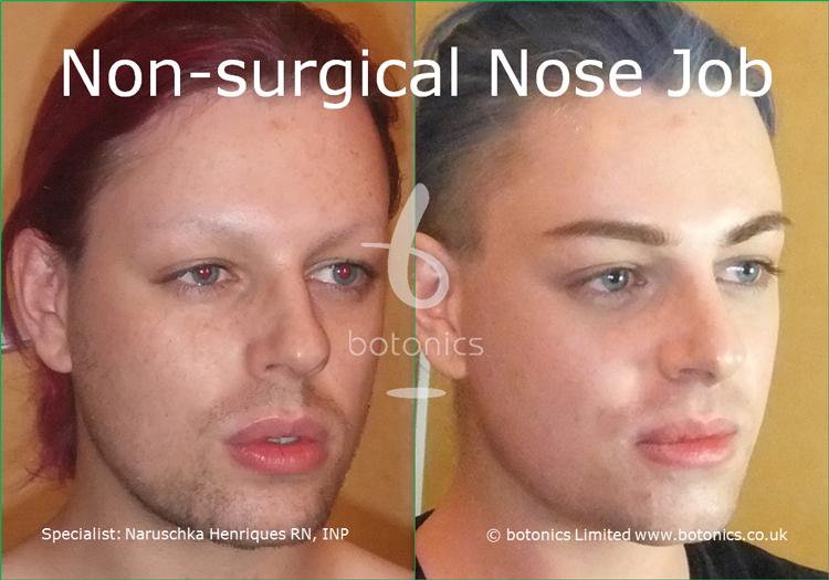Before and after photo of joseph harwood non surgical nose job from right
