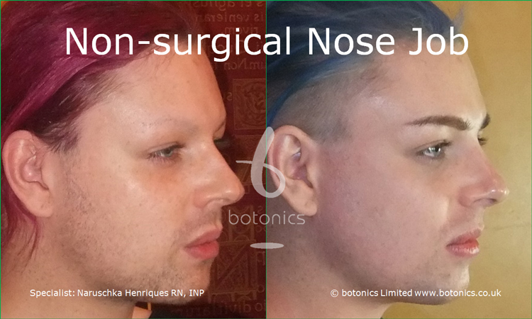 Before and after photo of joseph harwood non surgical nose job from right three quarter profile