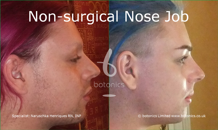 Before and after photo of joseph harwood non surgical nose job from right profile