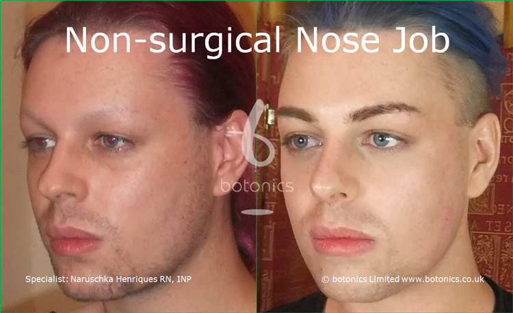 Before and after photo of joseph harwood non surgical nose job from left