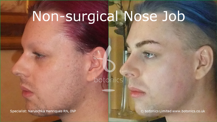 Before and after photo of joseph harwood non surgical nose job from left three quarter profile