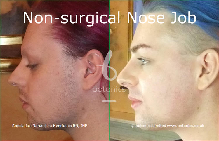 Before and after photo of joseph harwood non surgical nose job from left profile