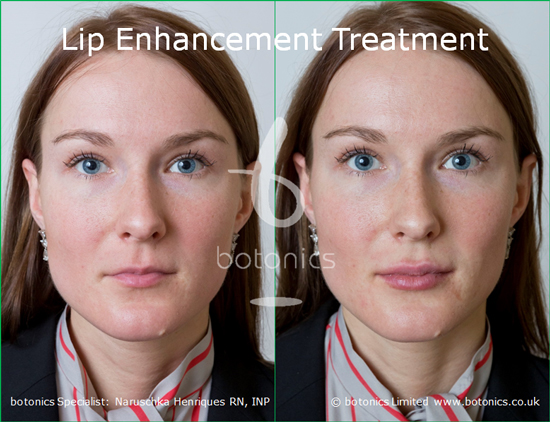 lip enhancement before and after photos