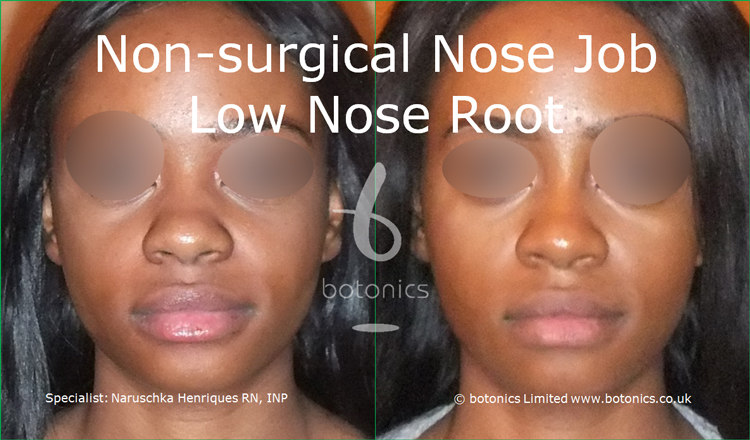 Before and after photo of no knife rhinoplasty black female low nose root