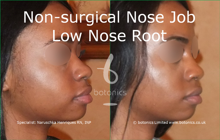 Before and after photo of no knife rhinoplasty black female low nose root from right three quarter profile