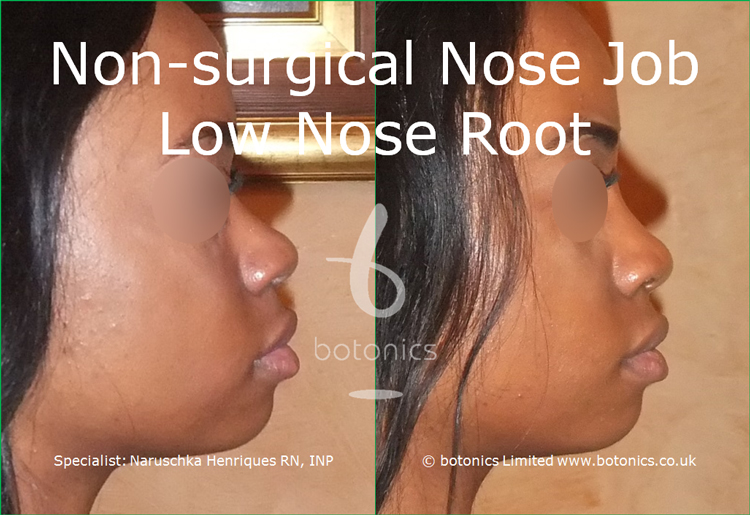 Before and after photo of no knife rhinoplasty black female low nose root from right full profile