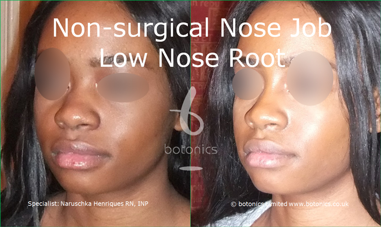 Before and after photo of no knife rhinoplasty black female low nose root from left