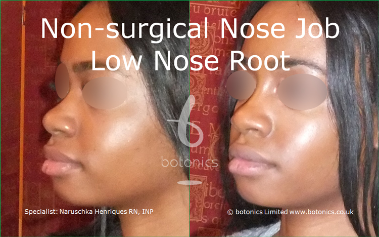 Before and after photo of no knife rhinoplasty black female low nose root from left three quarter profile