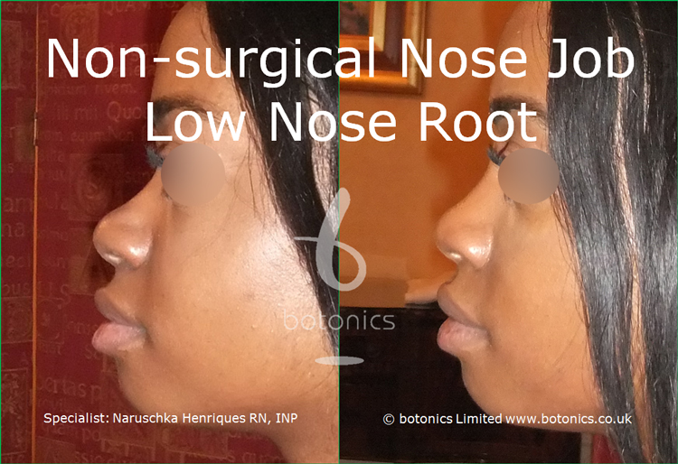 Before and after photo of no knife rhinoplasty black female low nose root from left full profile