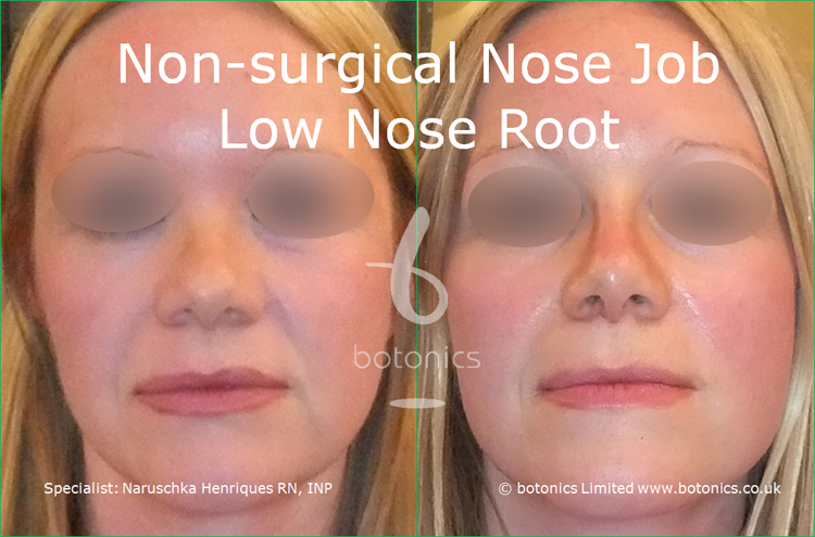 white female non surgical nose job before and after low nose root front view