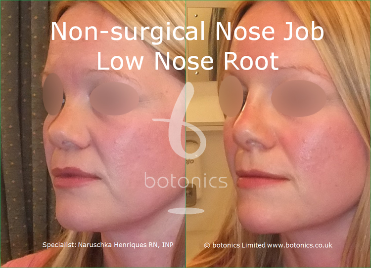 white female non surgical nose job before and after low nose root three quarter left view