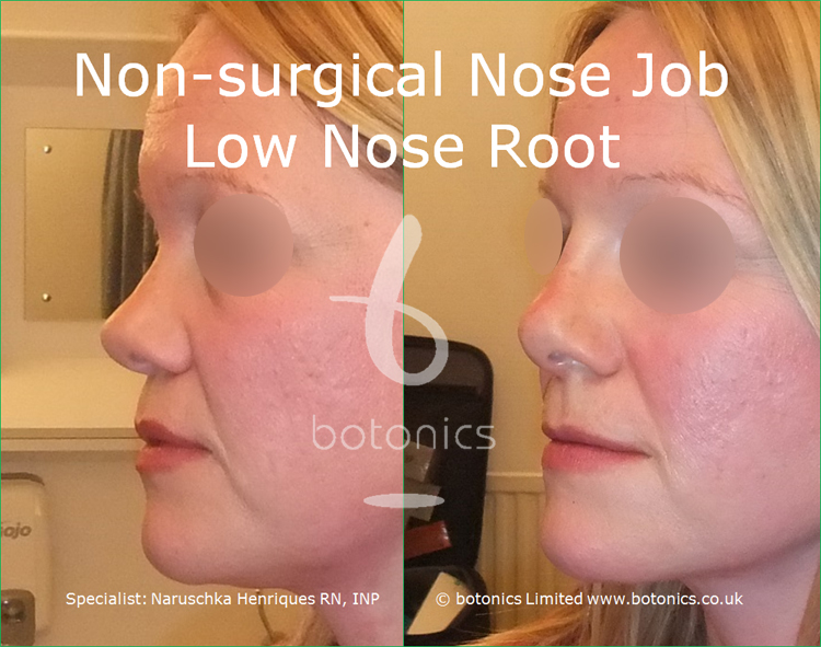 white female non surgical nose job before and after low nose root left view