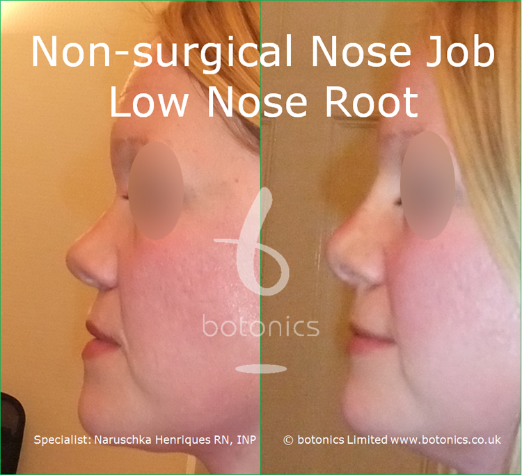 white female non surgical nose job before and after low nose root left profile view