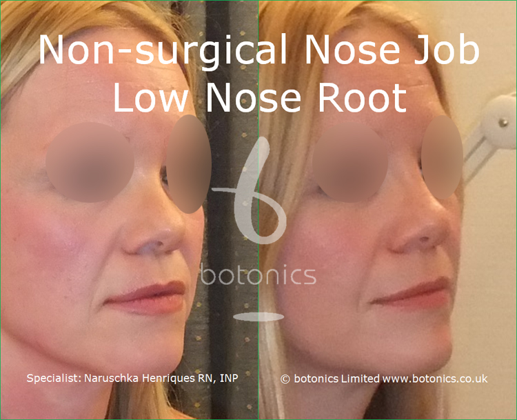 white female non surgical nose job before and after low nose root three quarter right view