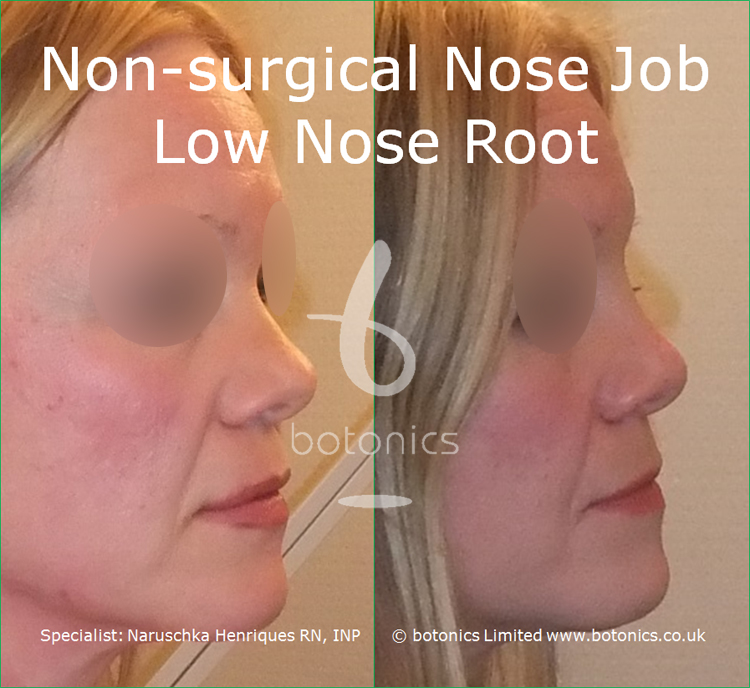white female non surgical nose job before and after low nose root right view
