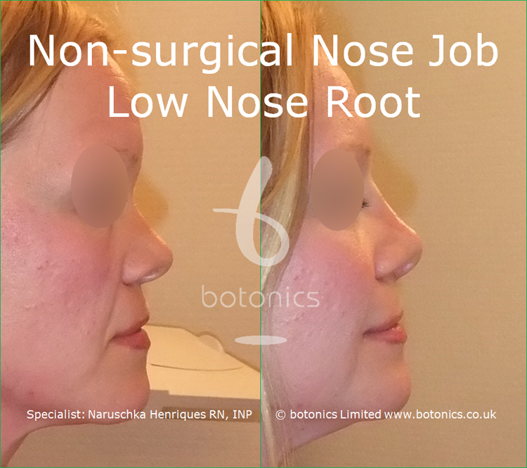 white female non surgical nose job before and after low nose root