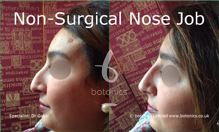 Nose enhancement before and after photos arab female left profile