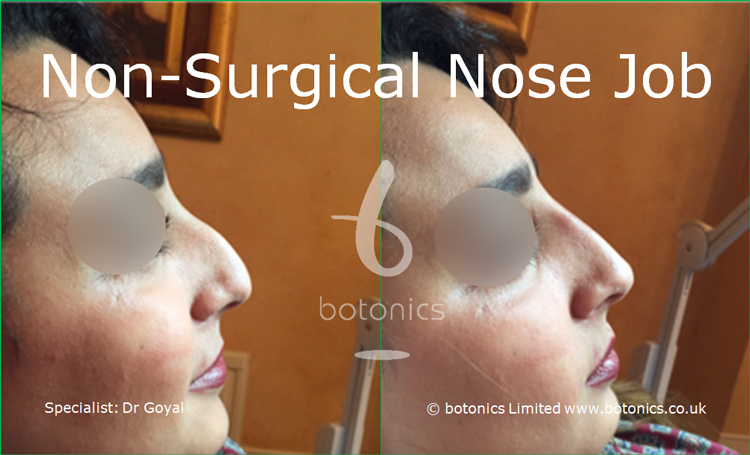 Nose enhancement before and after photos arab female right profile