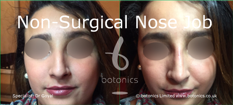 Nose enhancement before and after photos arab female straight on