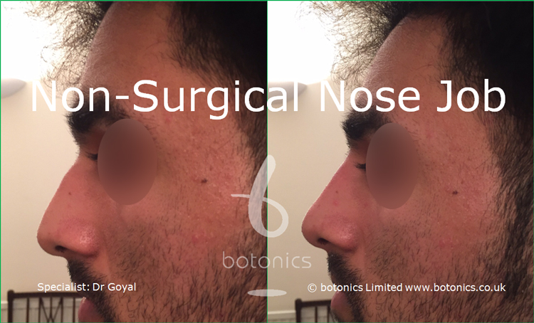 Nose enhancement before and after photos asian male left profile
