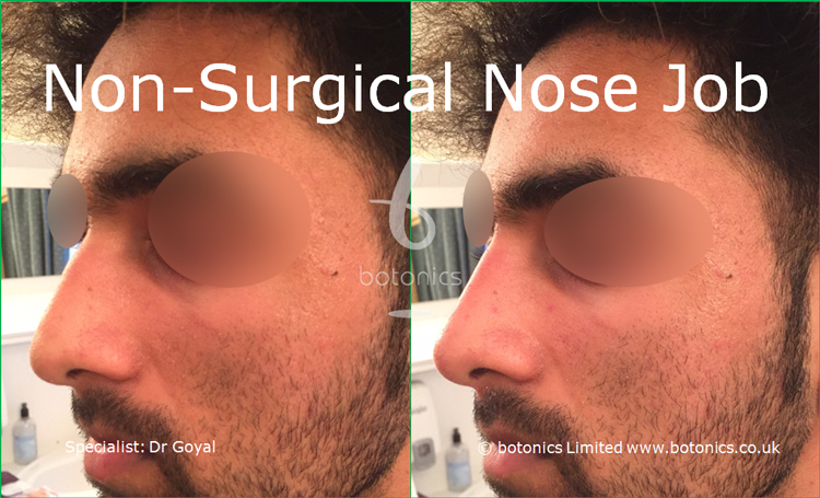 Nose enhancement before and after photos asian male left three quarter profile