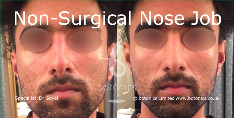 Nose enhancement before and after photos asian male straight on