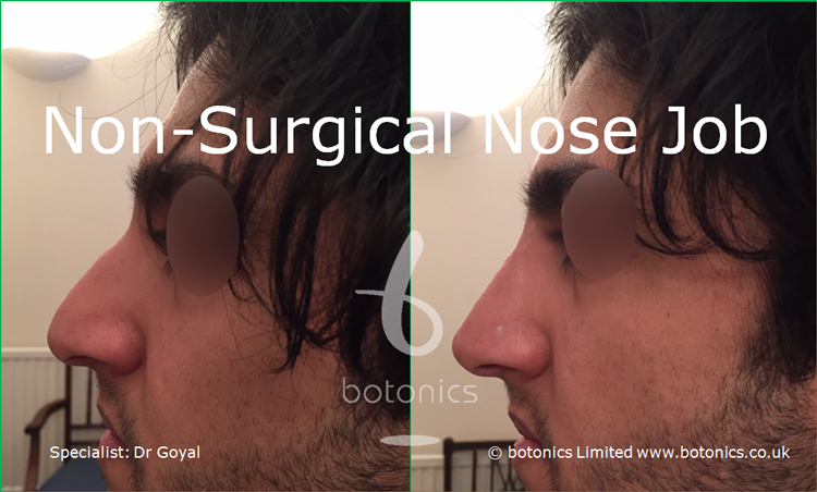 Nose enhancement before and after pictures asian male left profile