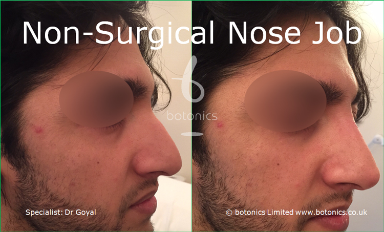 Nose enhancement before and after pictures asian male right three quarter view