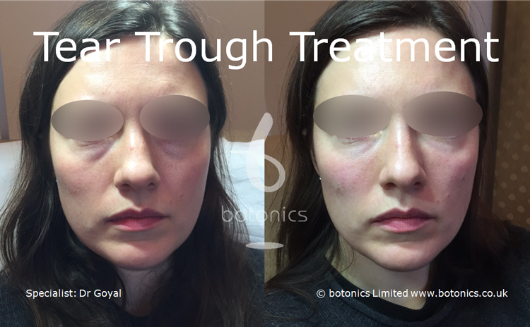 Tear Trough Before and After Female