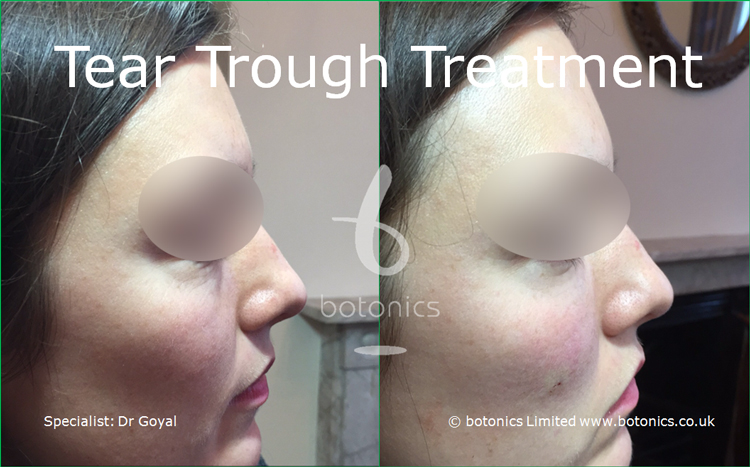 Tear Trough Before and After Female right profile view