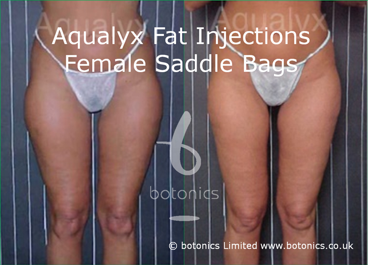 Aqualyx Fat Dissolving Injections to Outer Thighs