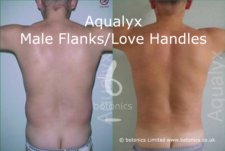 Aqualyx male before after