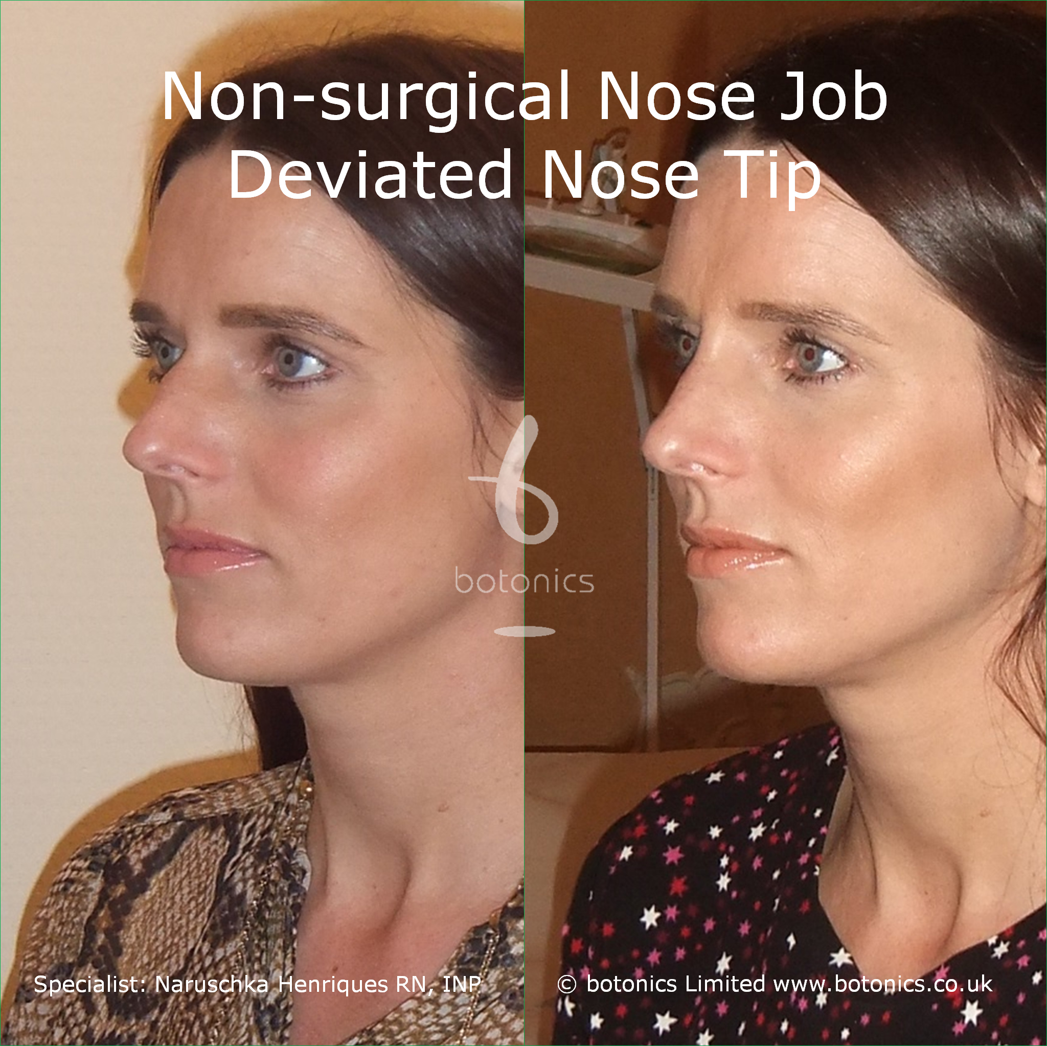 Non-surgical Nose Job Before and After Pictures - botonics